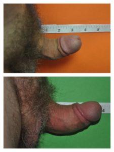 Peyronie's Disease Before & After